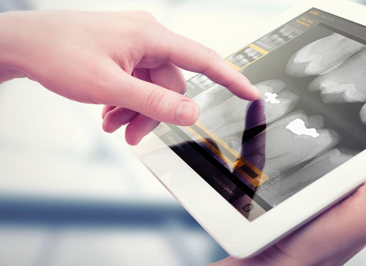 radiografia digitala